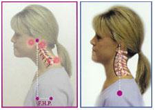 scoliosis-occurs