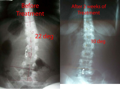 This 22 year old female came in with a 22º lumbar scoliosis Cobb angle, and was able to be reduced down to a 10º lumbar scoliosis Cobb after only 2 weeks with the CLEAR treatment.